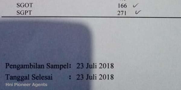 Hasil Test Hepatitis A HNI HPAI